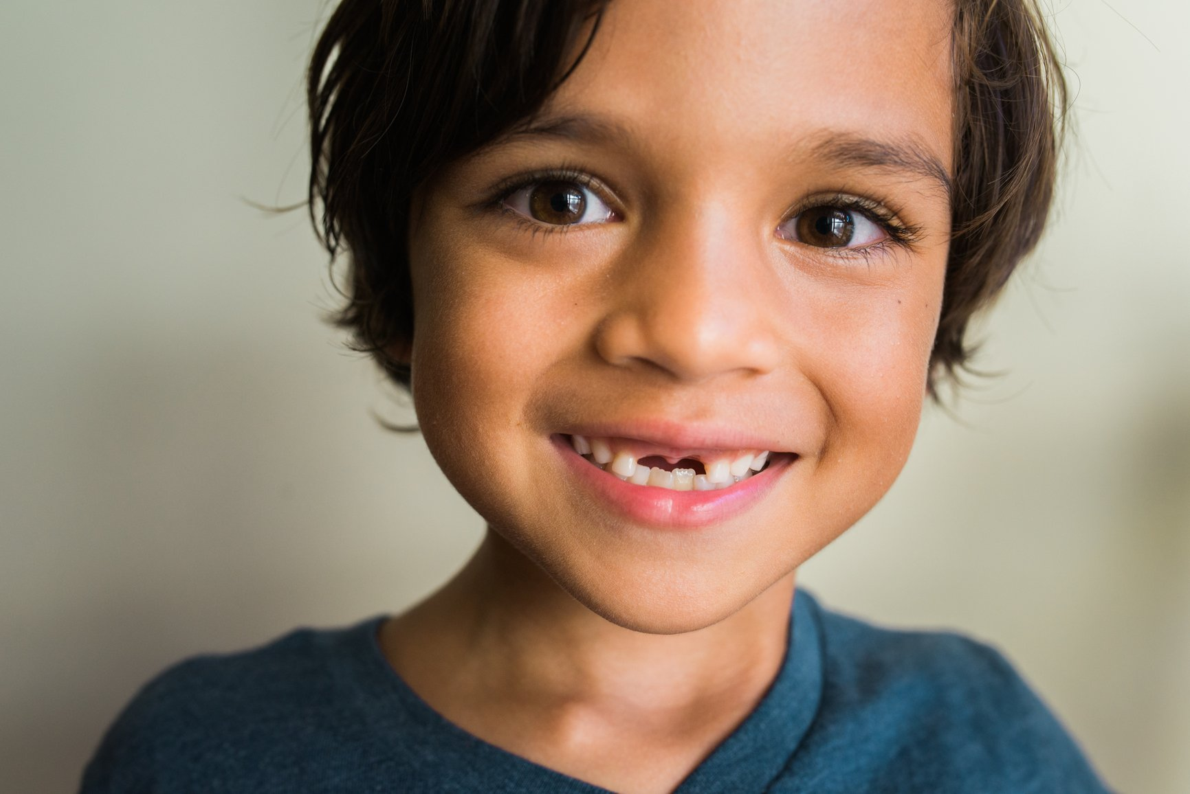 missing tooth child